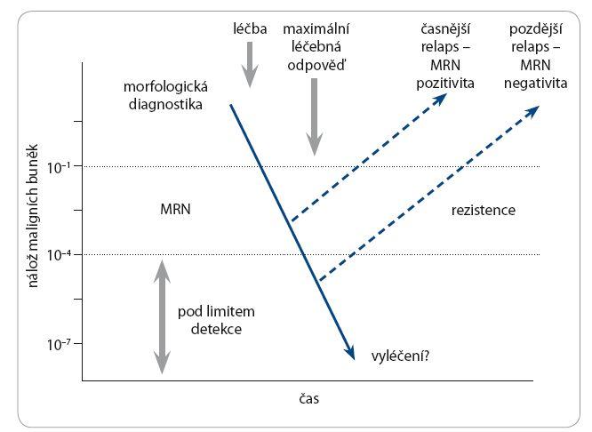 Schéma chování MRN po léčbě CLL.