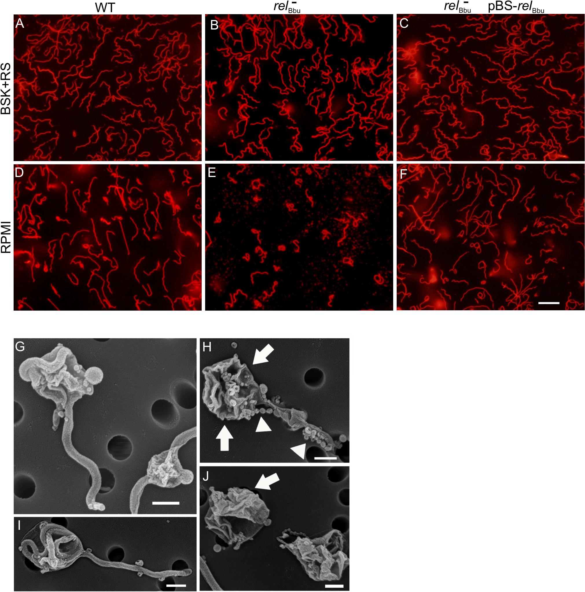 <i>rel</i><sub>Bbu</sub> regulates round body formation under starvation conditions <i>in vitro</i>.