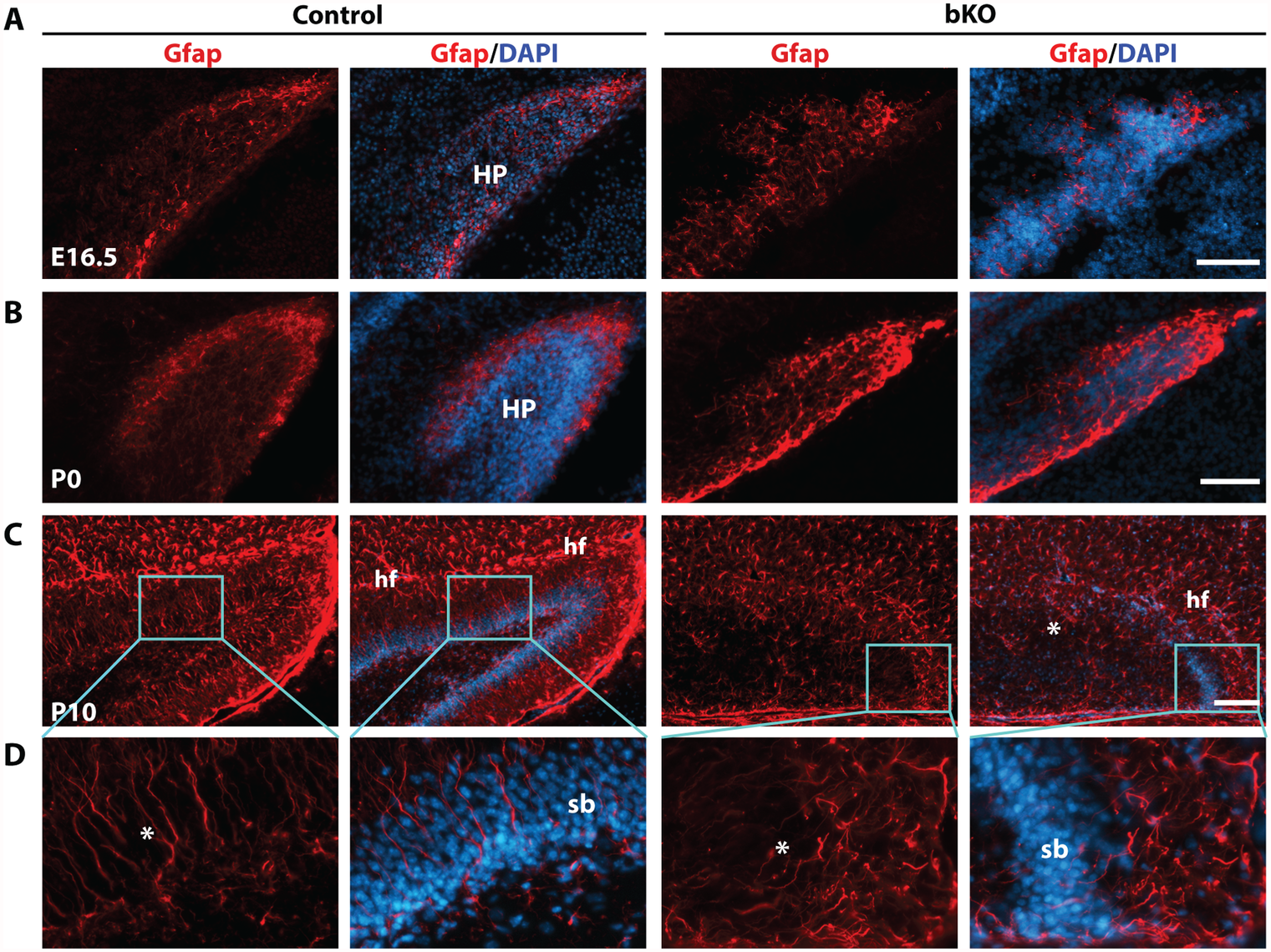 Deregulated Gfap expression in the mutant hippocampus.