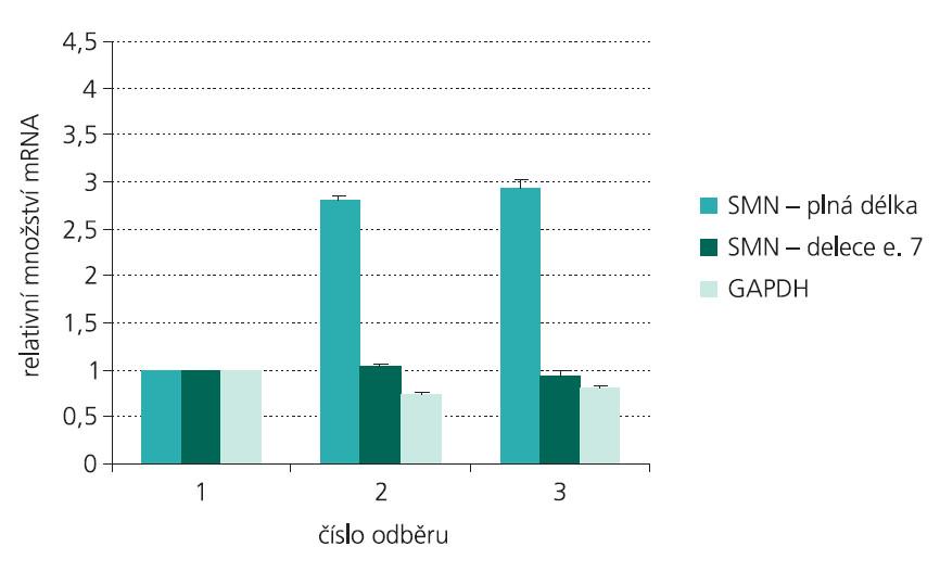 Pacient 16. Změny hladiny mRNA genu SMN2 o plné délce, mRNA genu SMN2 obsahující deleci exonu 7 a mRNA genu GAPDH v průběhu terapie VPA (vyhodnoceno vzhledem k genu HPRT a normalizováno k odběru před terapií – odběr 1).