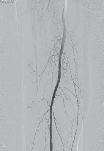 -8. Zrekanalizovaná popliteální arterie po DCB PTA a zrekanalizované ATA (arteria tibialis anterior), TTF trunku (trunkus tibiofibularis) se stenty.