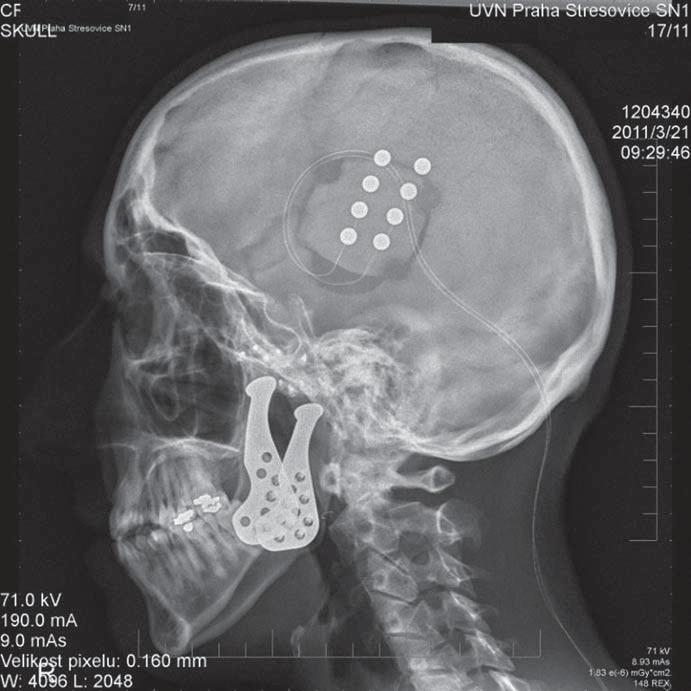 RTG snímek stimulace motorického kortexu u pacientky s pooperační neuropatickou bolestí obličeje.