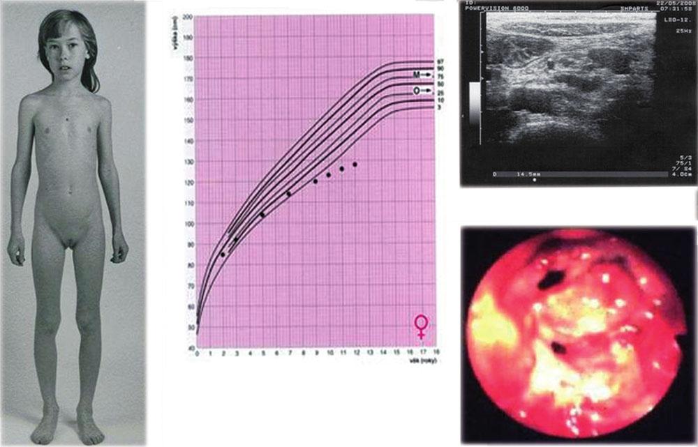 a, b, c, d. Dívka s progresivní růstovou retardací, u které byla následně zjištěna Crohnova nemoc (a, b). Sonografie ukázala zvětšené mezenteriální lymfatické uzliny a lehce rozšířenou stěnu terminálního ilea (c), kolonoskopie verifikovala těžké zánětlivé změny (d – pohled do oblasti Bauhinské chlopně).