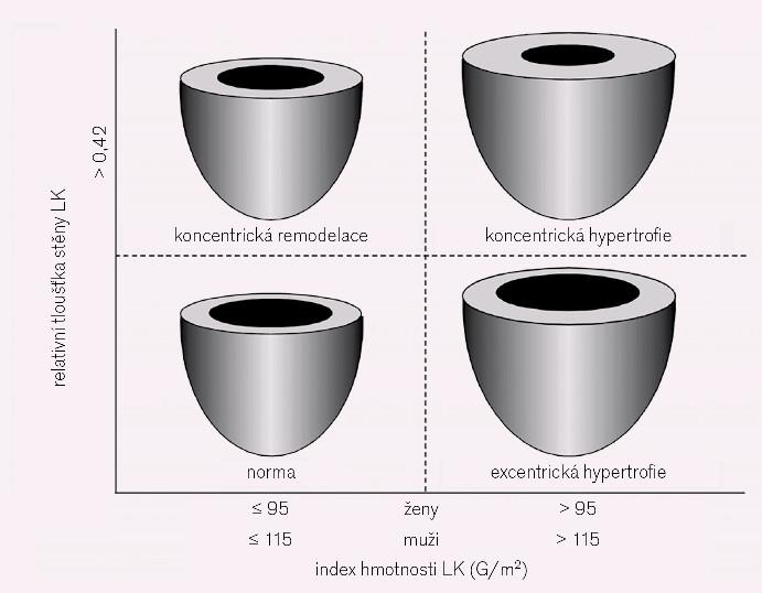 Klasifikace geometrie levé komory. Relativní tloušťka stěny LK (RWT) je kalkulována ze šířky zadní stěny levé komory (ZS) a rozměru LK v enddiastole (LKd) podle vzorce RWT = 2 × ZS / LKd. Alternativně je možno místo dvojnásobku šíře zadní stěny použít součet rozměrů komorového septa a zadní stěny v enddiastole, upraveno dle [11,13].