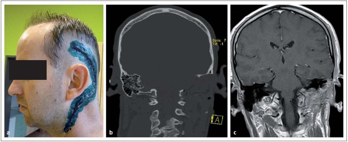 Glomus jugulare tumor po radikální resekci. Obr. 11a) Rozsah operační rány. Obr. 11b, c) Pooperační CT a MR bez rezidua nádoru.