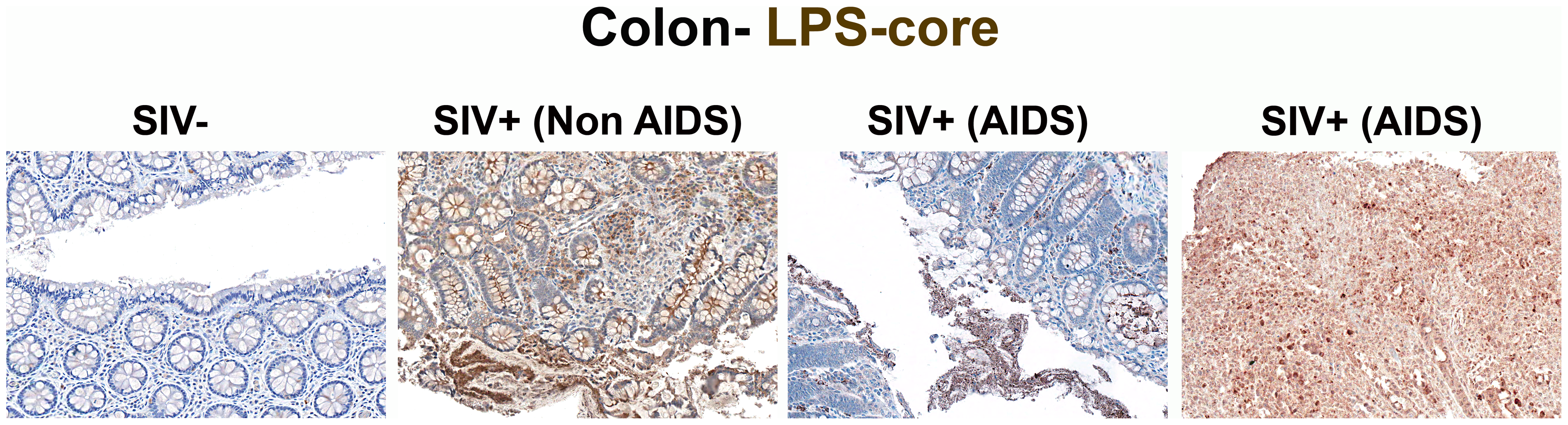 Identification of microbial translocation in large bowel of chronically SIV<sup>+</sup> RMs.