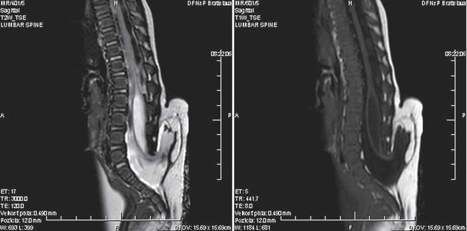 Obr. 5, 6. Zobrazenie spinálneho lipómu na MR v T1 a T2 vážení.