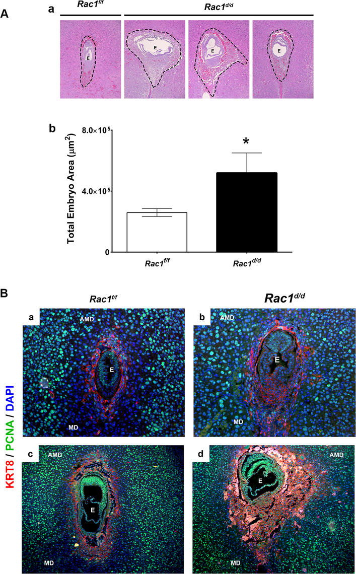 Enhanced trophoblast proliferation in <i>Rac1</i> conditional-knockout mouse.