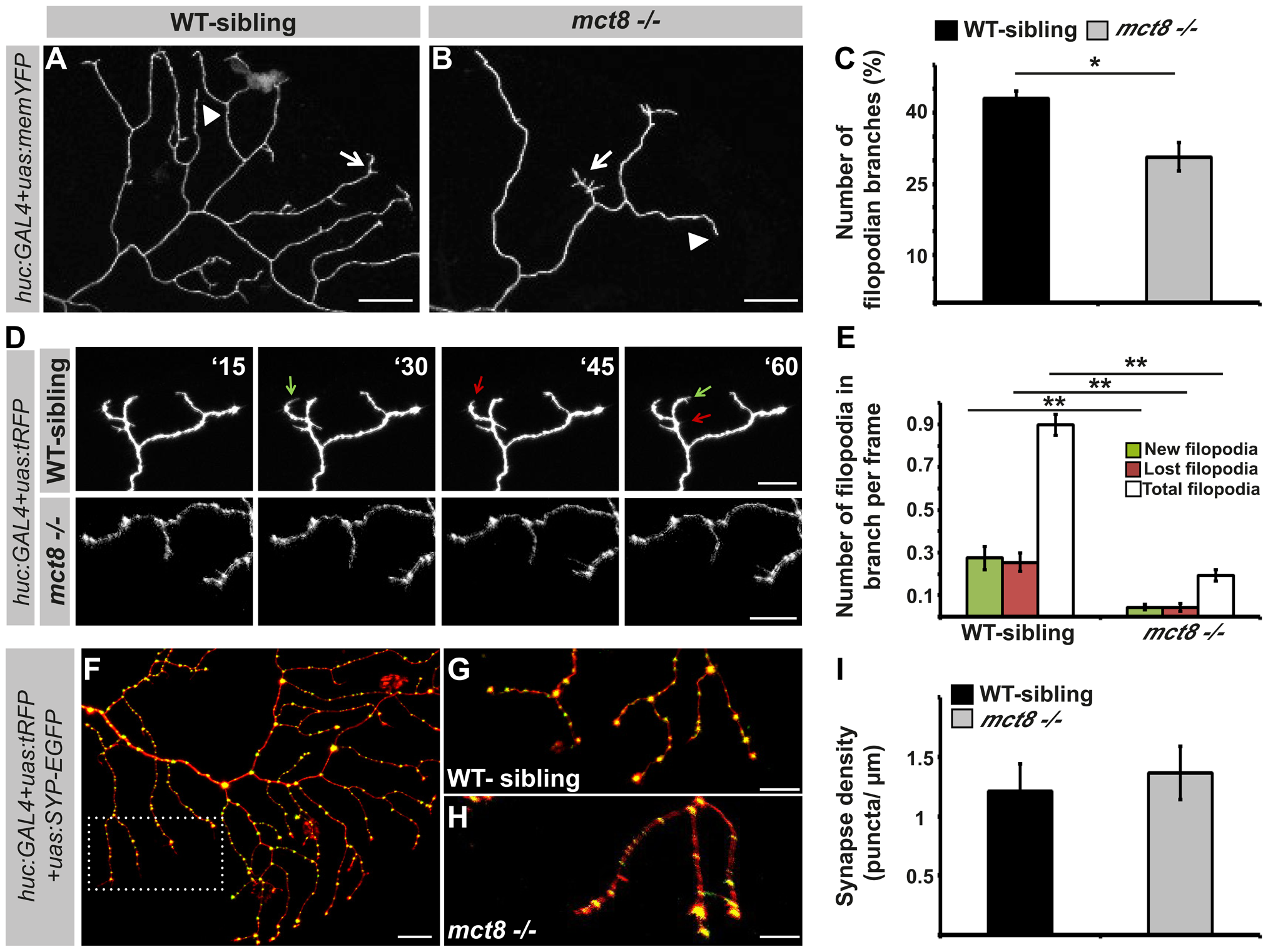 MCT8 reduces filopodia dynamics in the axons of RB neurons.