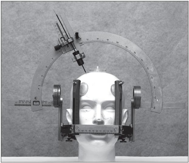 Obr. 1. Leksellův stereotaktický rám a oblouk.