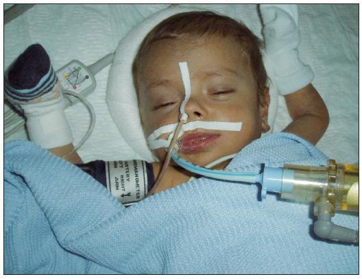 Dětský pacient krátce po transplantaci jater