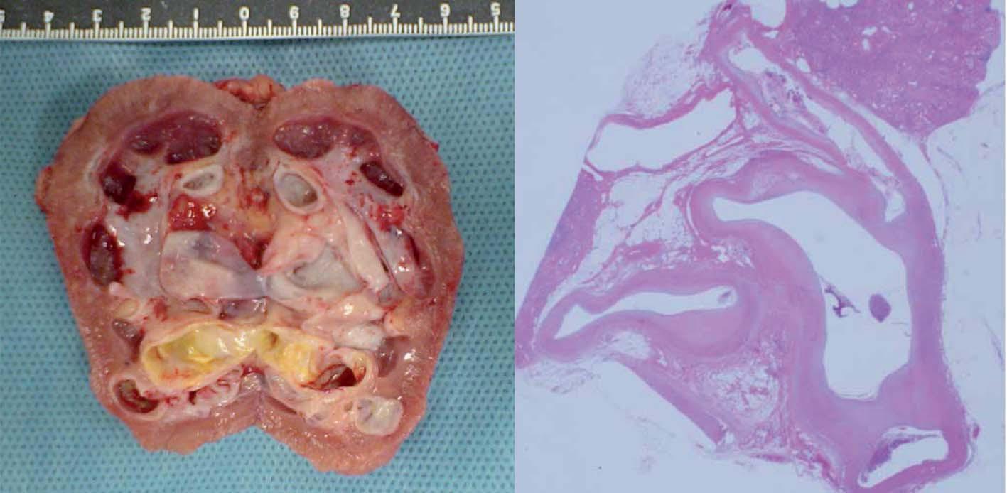 Schéma 5. Pravá ledvina – arteriální aneuryzma a žilní dilatace s arteriovenózní píštělí, 180 g.