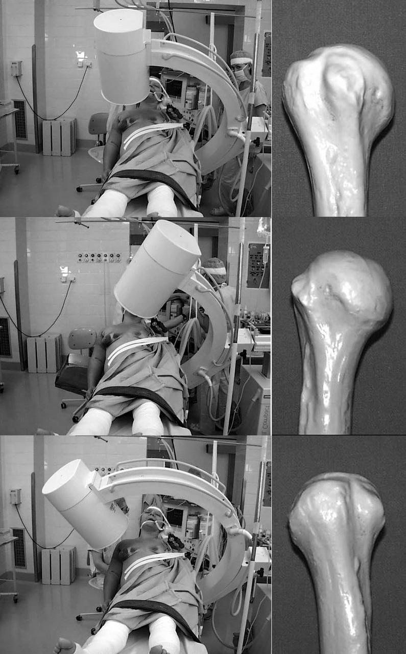 Postavení RTG přístroje při operaci