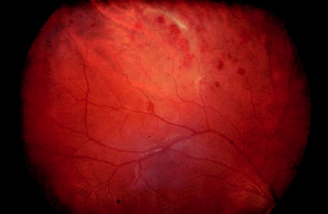 Fundus pravého oka: zúžené, tortuózne retinálne cievy s perivazálnymi exsudátmi, hemoragiami a opúzdrením, hlavne v hornej polovici fundu