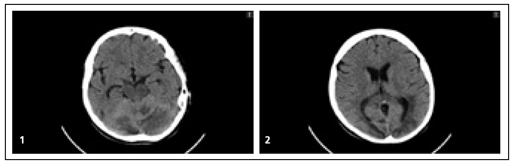 Obr. 1, 2. CT mozku: vícečetné neostře ohraničené hypodenzity v obou mozečkových hemisférách, supratentoriálně v okcipitálních a parietálních lalocích obou hemisfér, vlevo zčásti zasahují i do temporálního laloku. Není patrné postkontrastní sycení těchto hypodenzit.