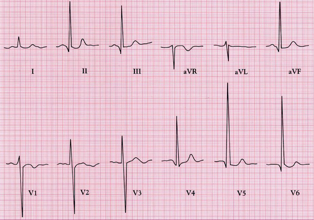 EKG ukazuje vysoké kmity R nad levou komorou a hluboké kmity S v protilehlých svodech – obraz diastolického přetížení.