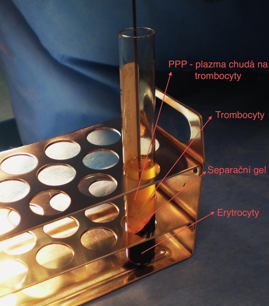 Venózní krev ve zkumavce po centrifugaci