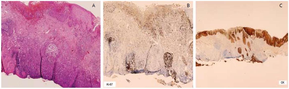 – invadujúce čapy ESCC, B – vysoká proliferačná aktivita Ki-67 v čapoch, C – imunohistochémia – cykeratín, čap dosahujúci spodinu resekátu. Fig. 4. A – invasive squamous cell carcinoma of esophagus with infiltrating border, B – high proliferative activity of Ki-67, C – cytoceratin immunohistochemical staining, ESCC reached base of resection specimen.