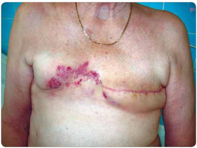 Zarudlé kožní infiltráty ve střední a mediální části jizvy po pravostranné ablaci prsu signalizující recidivu angiosarkomu (pacient č. 1).