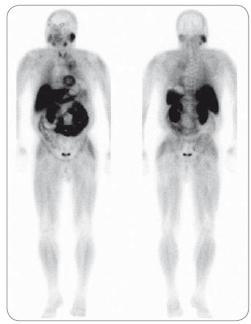 Celotělová <sup>99m</sup>Tc-MIBI scintigrafie u pacienta se solitárním plazmocytomem levého femuru s osteolýzou, progrese do mnohočetného myelomu. Patologická akumulace radiofarmaka ložiskového typu je patrná v oblasti apexu levé plíce. K bližší anatomické lokalizaci a ke vztahu léze k okolním strukturám se nelze při tomto funkčním vyšetření vyjádřit.