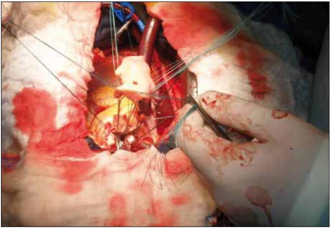 Peroperačná fotografia – implantácia homograftu do aortálnej pozície.