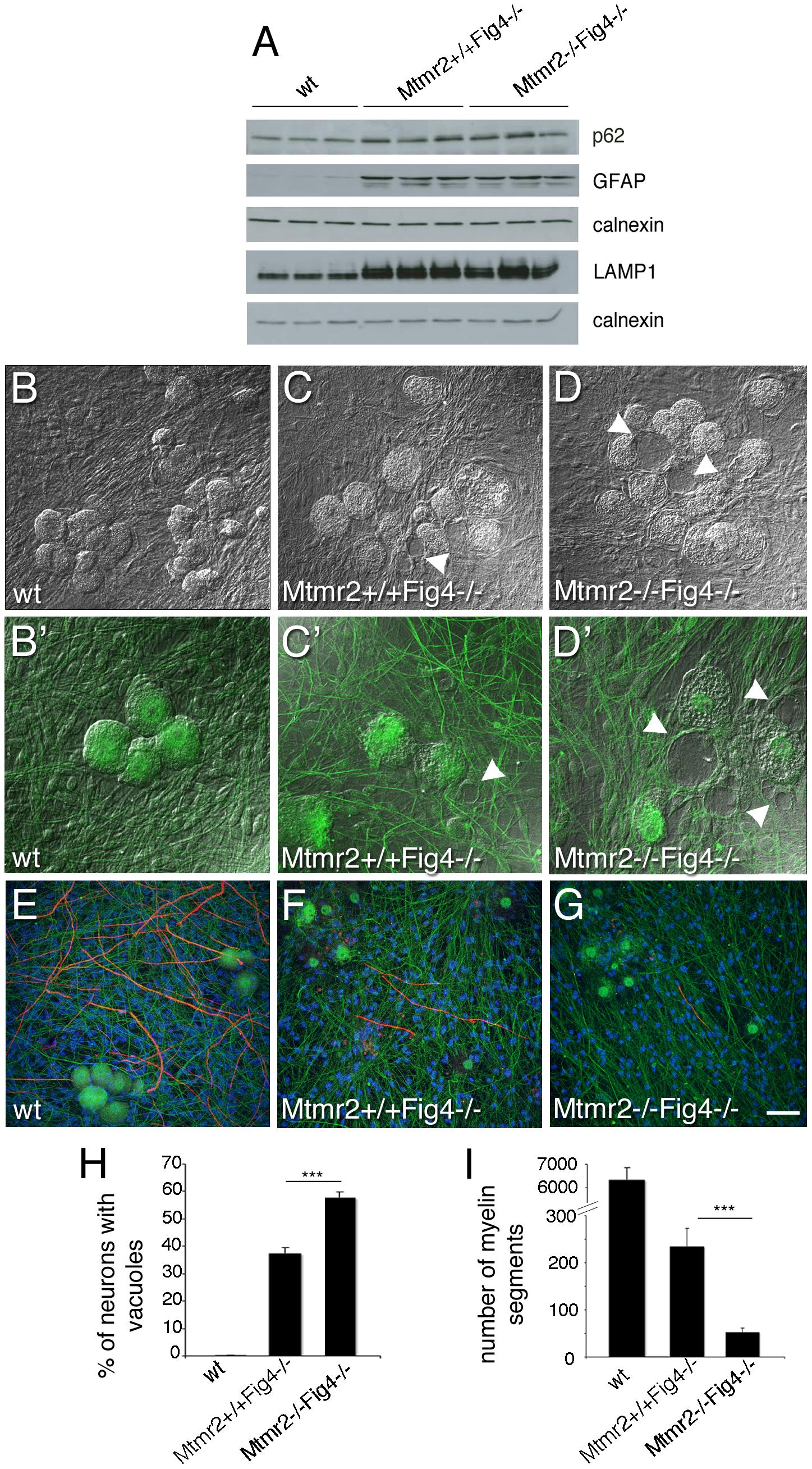 Mtmr2 loss in neurons exacerbates <i>Fig4</i>-null neurodegeneration.