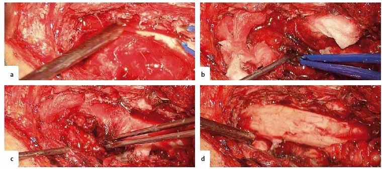 Intraoperative images. A – encapsulated, extramedullary tumour, B – fenestration in the tumour capsule, C – evacuation of an intracapsular haematoma, D – final aspect with total resection of the tumour.