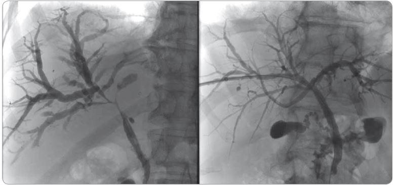 Cholangiografie před a po léčbě kortikosteroidy.