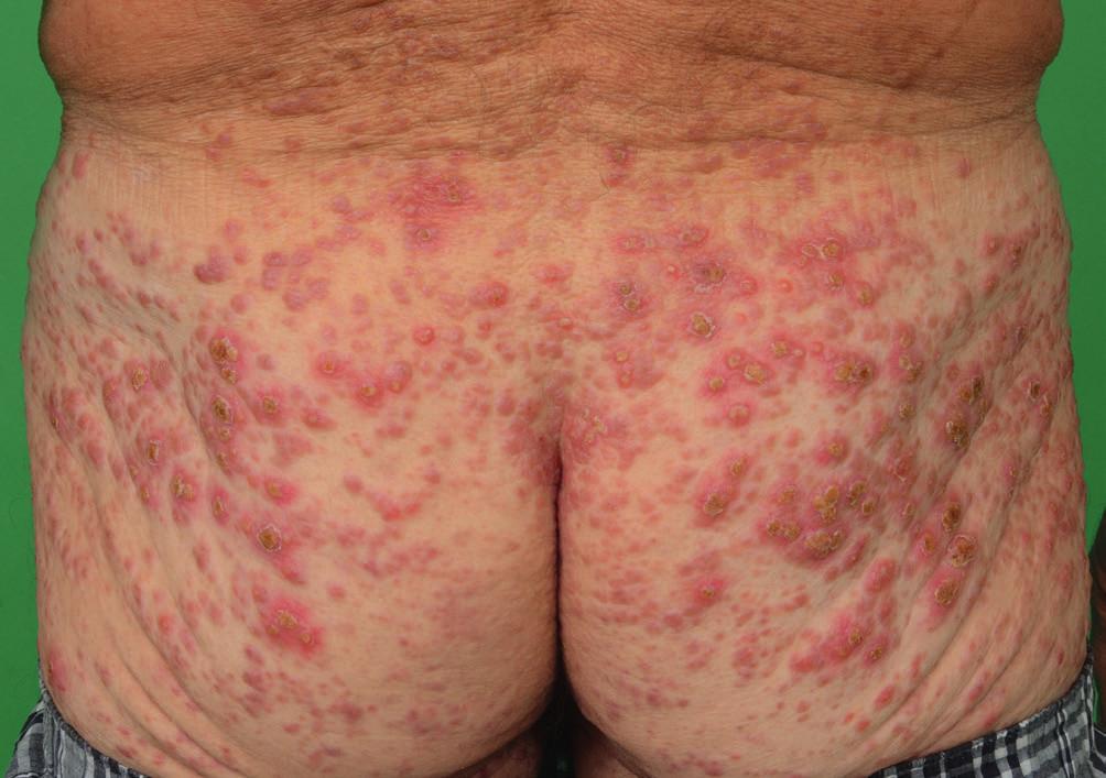 Vývoj kožních projevů indeterminate-cell histiocytosis o 4 měsíce později v dubnu 2016