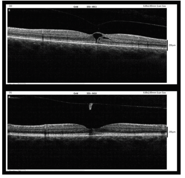 OCT findings five weeks after MH diagnosis (10/2017, upper – right eye, lower – left eye)