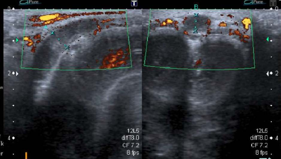 Ultrasonografie s užitím barevného dopplerovského vyšetření ukazující trombus a dilataci žíly (archiv autora )<br>