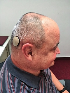 Pacient se zevním audioprocesorem 3 týdny po operaci.