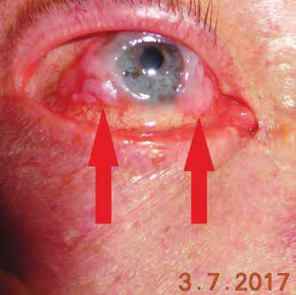 Klinický obraz pacienta so skvamocelulárnym karcinómom bulbárnej spojovky