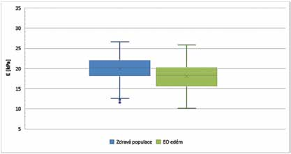 Hodnoty elasticity přímých okohybných svalů – Endokrinní orbitopatie ve fázi edému ve srovnání se zdravou populací