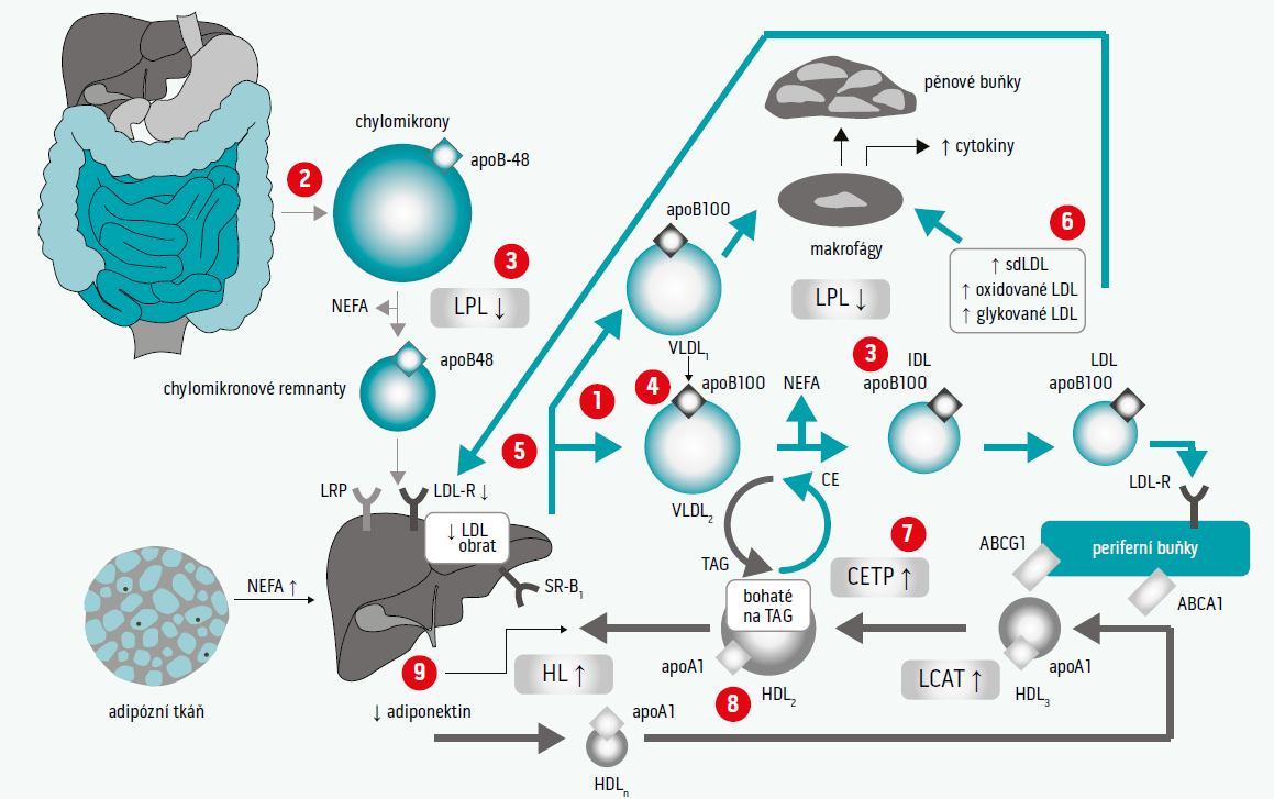 Schéma. Abnormality v lipidogramu u DM2T: (1) zvýšená tvorba VLDL (zejm. VLDL1) (2) zvýšená tvorba chylomikronů (3) snížení katabolizmu jak chylomikronů, tak VLDL (snížení aktivity LPL) (4) zvýšená tvorba velkých částic VLDL (VLDL1), zejména vychytávaných makrofágy, LDL (abnormality ve složení a kinetice) (5) snížený obrat LDL (snížení receptorů LDL B/E) (6) zvýšení počtu glykovaných částic LDL, malých denzních LDL (bohatých na TAG) a oxidovaných LDL, které jsou preferenčně vychytávány makrofágy; HDL (snížení HDL-C, kvalitativní změny a změny v kinetice) (7) zvýšení aktivity CETP (zvýšený transfer triacylglycerolů z TAG-bohatých lipoproteinů na LDL a HDL částice) (8) zvýšený obsah TAG v HDL, který podporuje aktivitu HDL a katabolizmus HDL (9) nízký obsah adiponektinu v plazmě, podporuje zvýšení katabolizmu HDL. Upraveno podle [14]