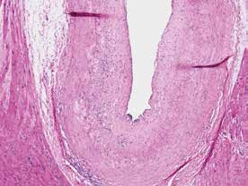 Vaskulopatie štěpu. Autorka MUDr. Víta Žampachová