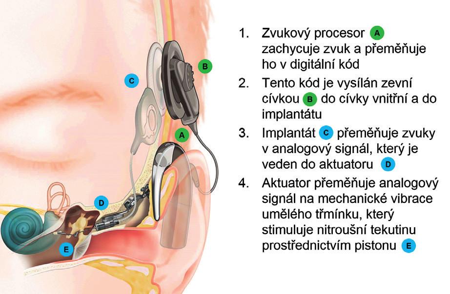 Schéma aktivního středoušního implantátu Codacs® (Cochlear Ltd, Sydney, Austrálie). Přímý akustický kochleární implantát přenáší vibrace přímo do nitroušní tekutiny. (Zdroj: Cochlear Ltd, Sydney, Austrálie.)