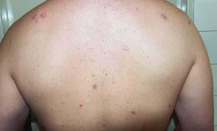 Pohľad na hornú časť chrbáta s viacpočetnými bazocelulárnymi karcinómami kože.