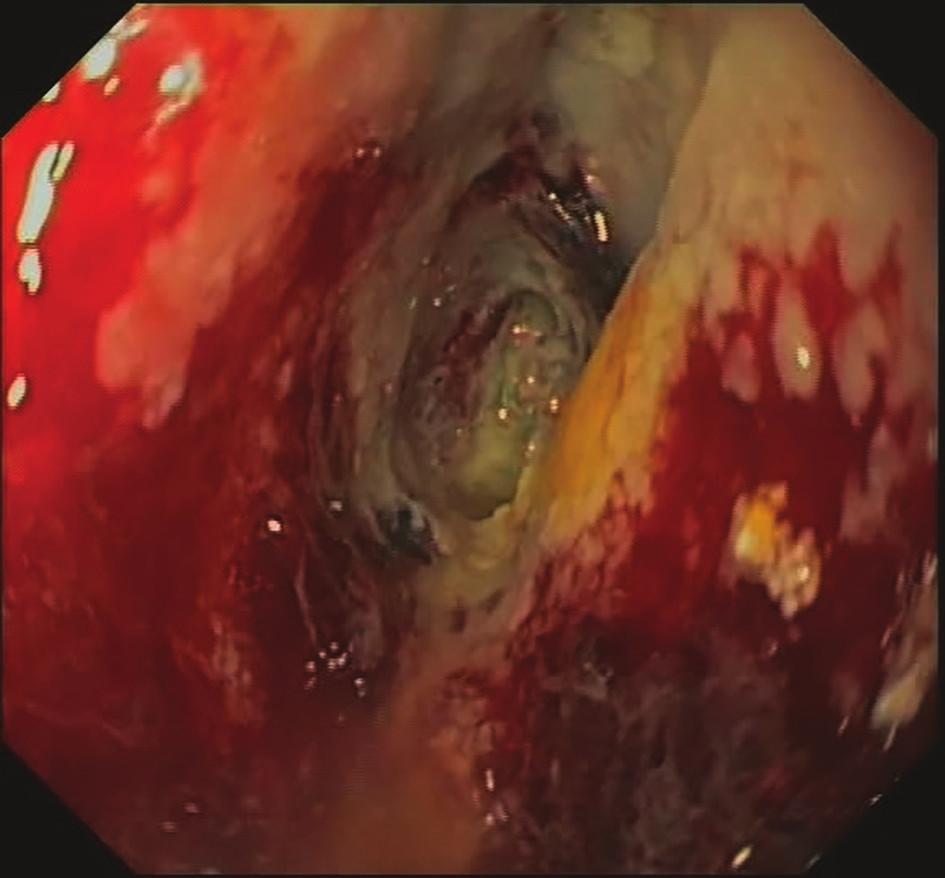 7. den EVAC – odlučující se nekrózy, formující se granulační tkáň<br> Fig. 3: EVAC, day 7 – necrosis, granulation tissue formation