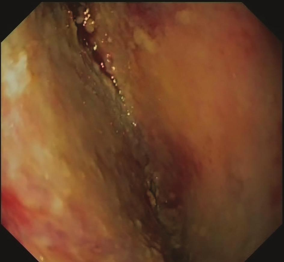 12. den EVAC − granulující tkáň mediastina<br> Fig. 4: EVAC, day 12 − mediastinal granulation tissue