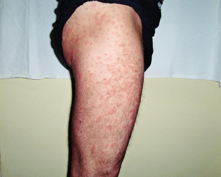 Snímek druhého pacienta s kopřivkovými morfami před léčbou anakinrou