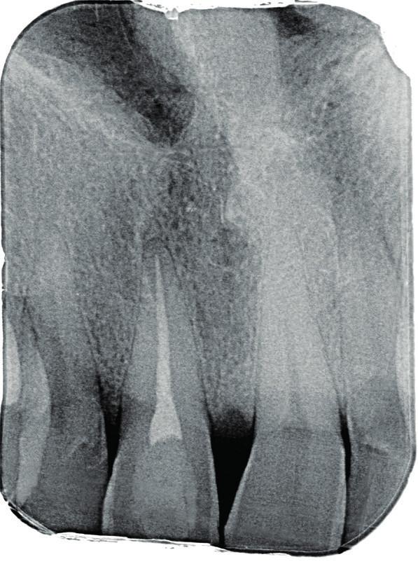 Diagnostický intraorální rentgenový snímek zubu 11 v apikálním zastavení při konziliárním vyšetření