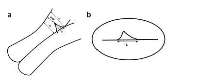 Popis TVUZ obrazu isthmokély v a) sagitálním b) transversálním řezu