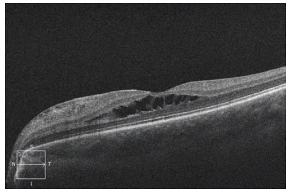HD-OCT: Lineární horizontální transfoveolární sken levého oka s obrazem schisis-like makulopatie se separací v oblasti středních retinálních vrstev