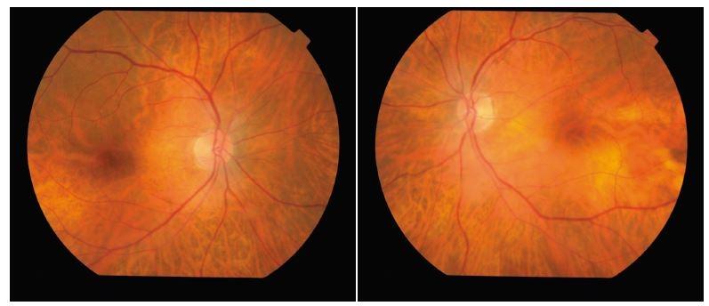 Obr. 1 a,b Očné pozadie - terč zrakového nervu je temporálne bledší bilaterálne.