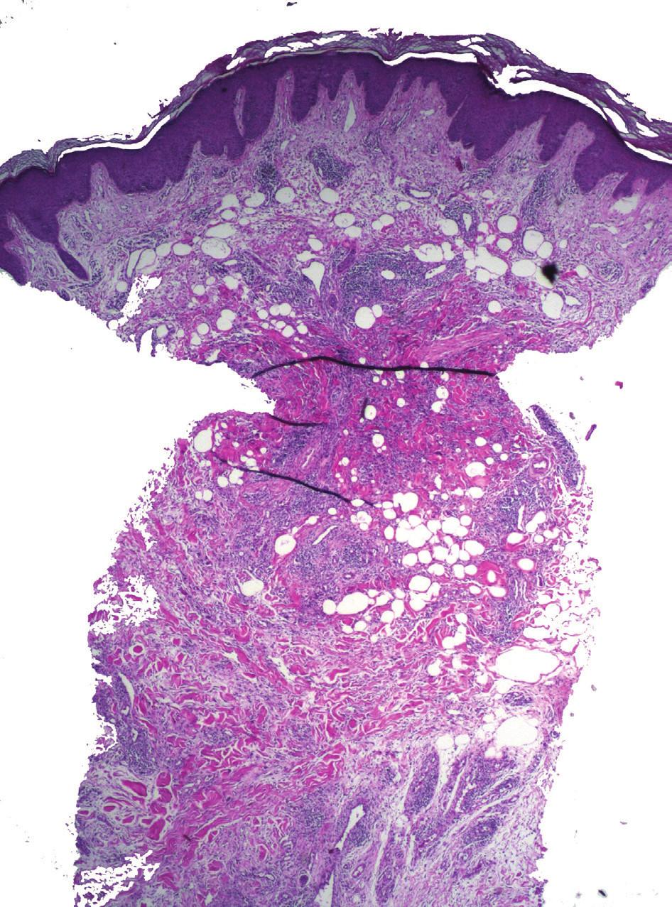 Deformace průbojníkové excize pinzetou a pseudolipomatosis cutis – mnohočetné vakuoly v koriu