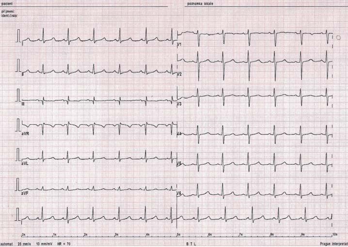 12svodové EKG po úspěšně provedené ablaci FAT u stejného pacienta.