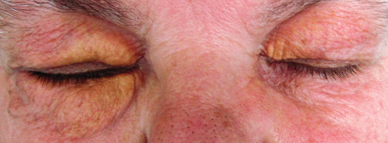 Periokulární xantogranulom u pacientky s nízkou koncentrací monoklonálního imunoglobulinu