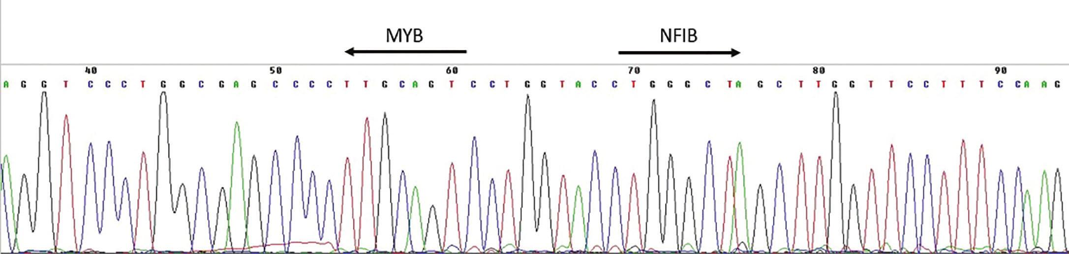 Výsledek sekvenace amplifikačního produktu RT-PCR k průkazu fúzního transkriptu MYB-NFIB.