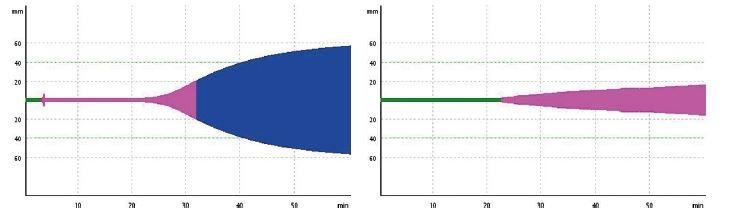 Obr. 1 a 2 Vyšetření ROTEM (EXTEM + FIBTEM) při příjmu pacienta, koagulum se začíná tvořit až po 20 minutách (norma je do 79 sekund!)